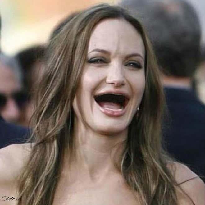 Фотографии голливудских звёзд без зубов, которые реально развеселят вас