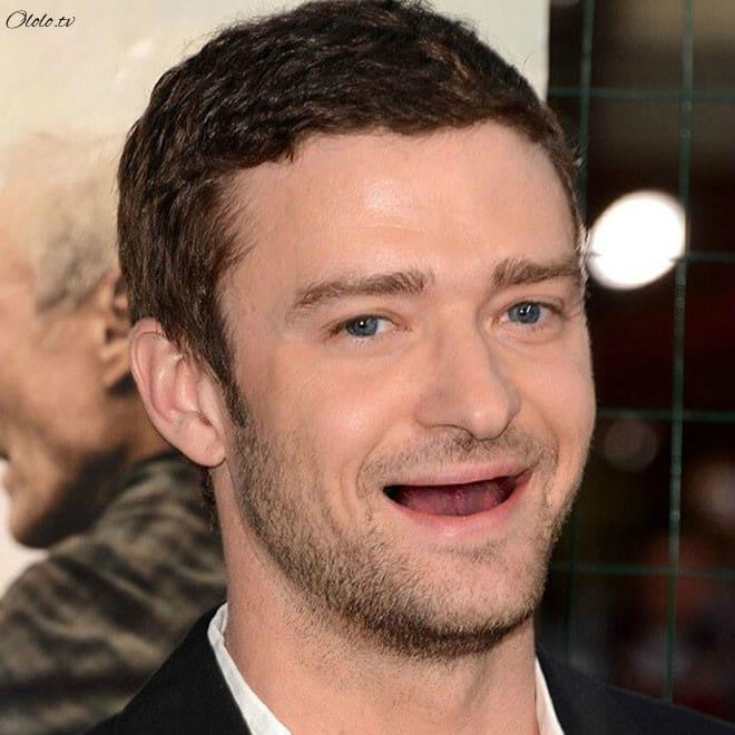 Фотографии голливудских звёзд без зубов, которые реально развеселят вас рис 2