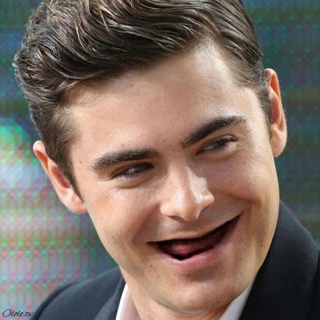 Фотографии голливудских звёзд без зубов, которые реально развеселят вас рис 4