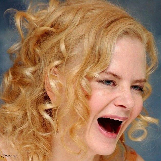 Фотографии голливудских звёзд без зубов, которые реально развеселят вас рис 5