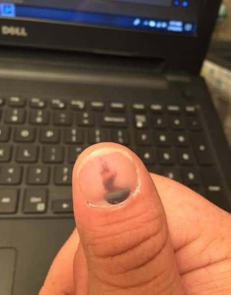 синяк на ногте