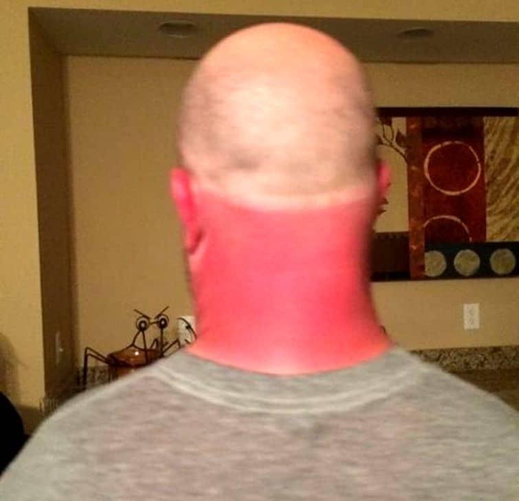 неровный загар на шее