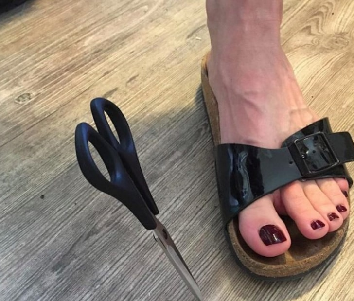 нога и ножницы