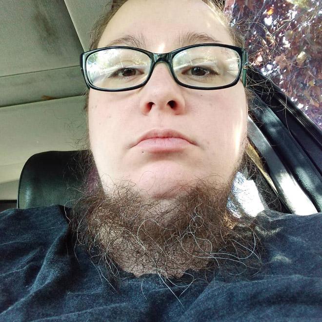 бородатая девушка
