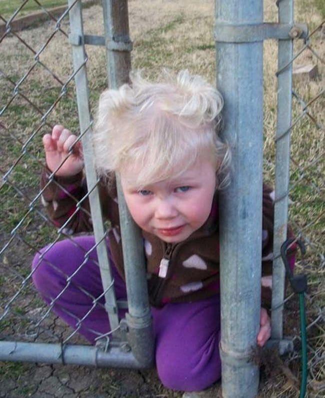 ребенок застрял головой в заборе