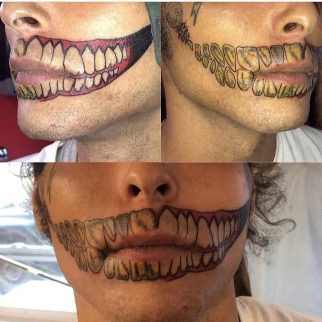 тату зубов на лице