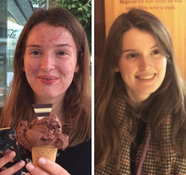 девушка до и после