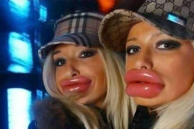блондинки с перекачанными губами