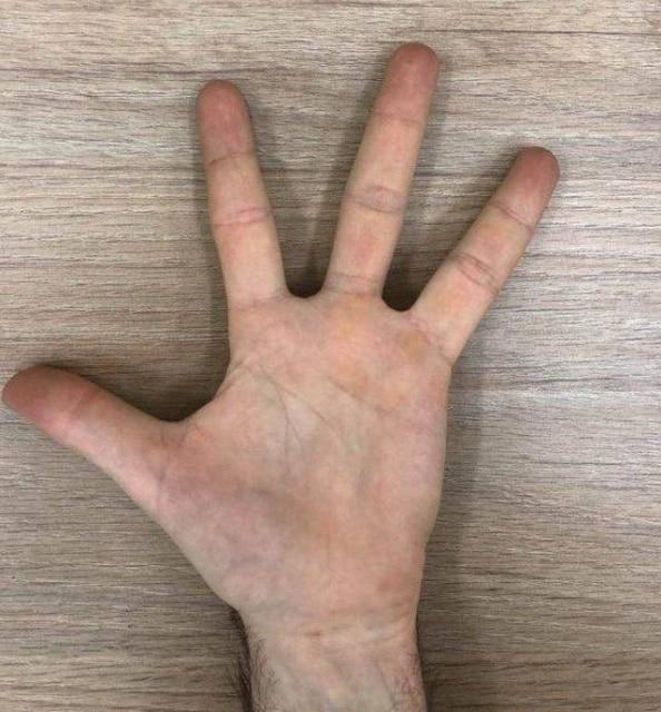 рука с четырьмя пальцами