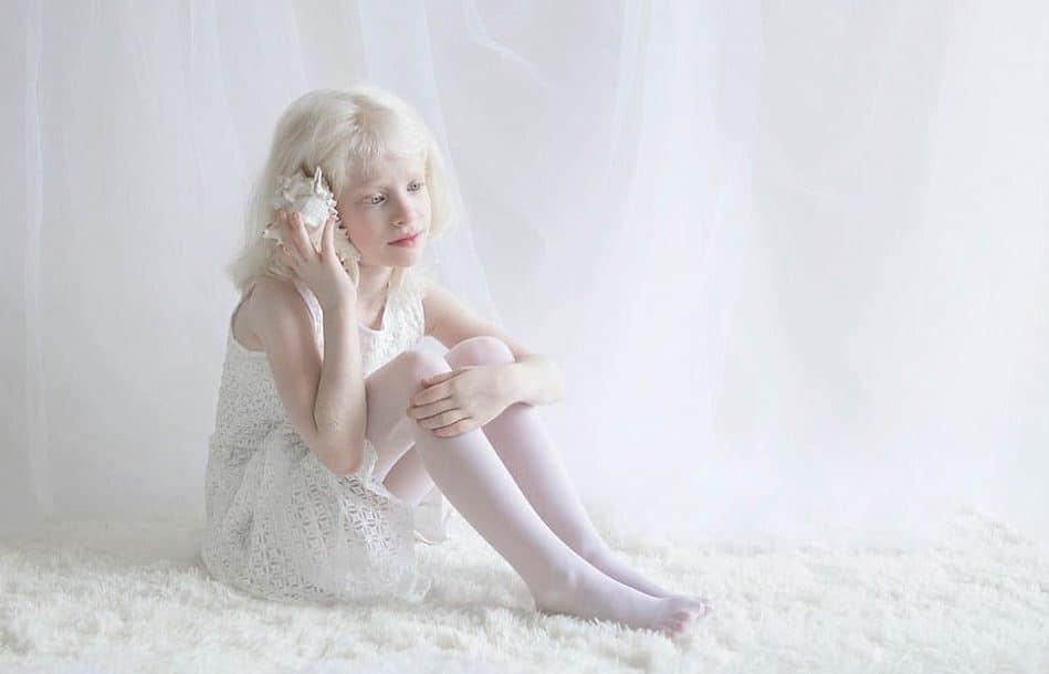 Девочка-альбинос прижала к уху белую ракушку