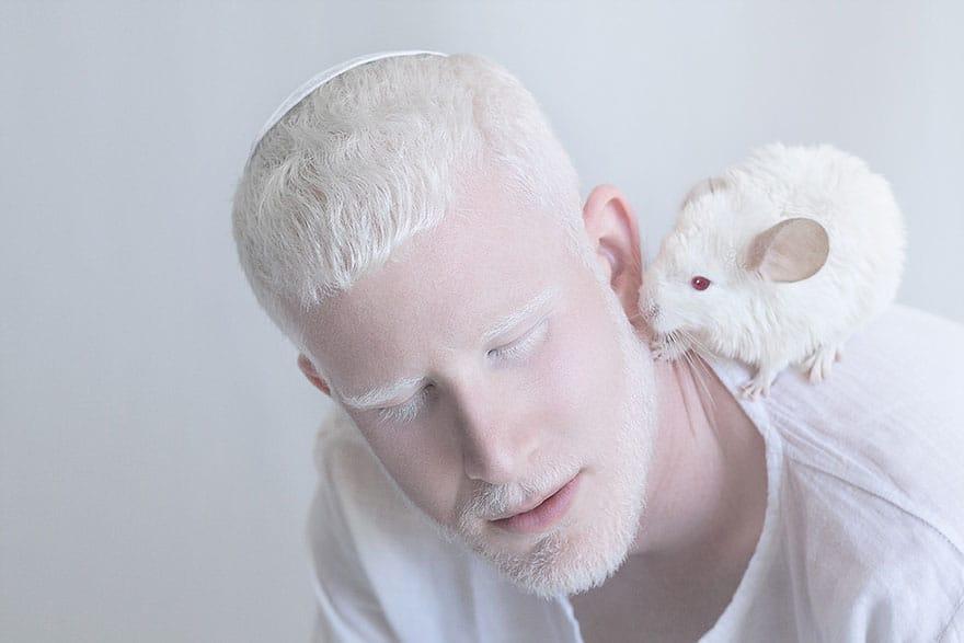 Парень-альбинос с белой шиншиллой