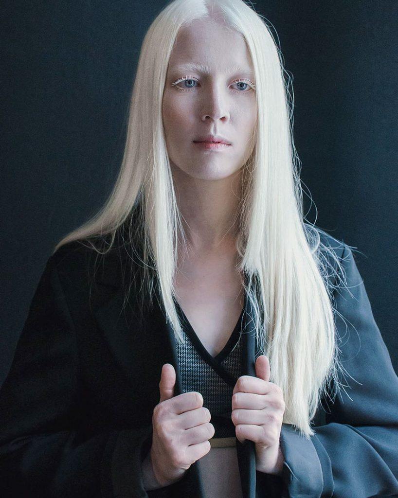 Девушка-альбинос в темном пиджаке