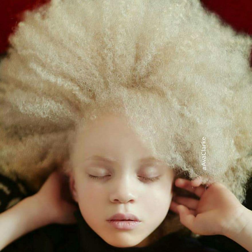 девушка-альбинос с кучерявыми волосами
