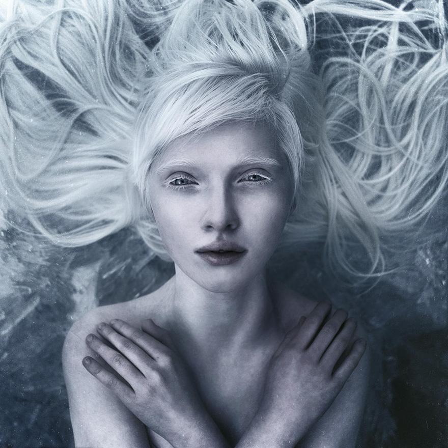 Девушка альбинос сложила руки на груди