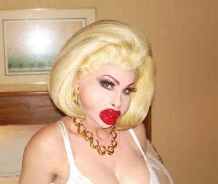 блондинка с увеличенными губами