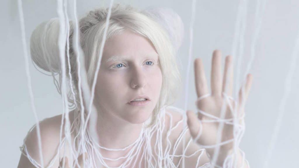 Девочка-альбинос в белых нитях