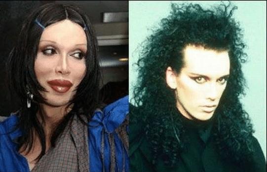 мужчина до и после пластики