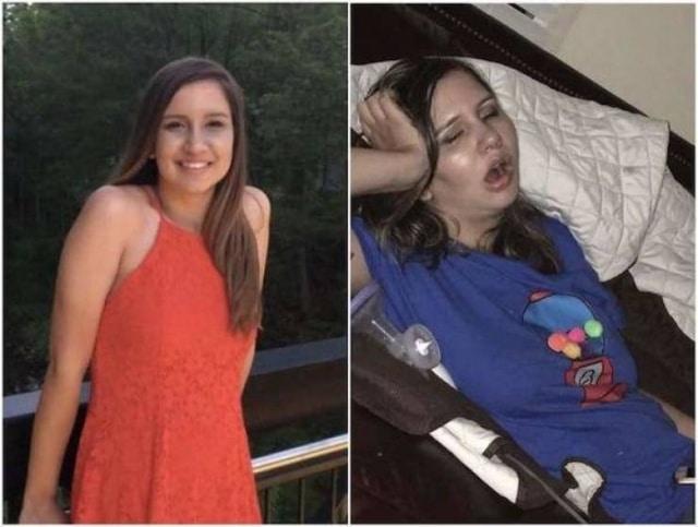 девушка до и после появления детей