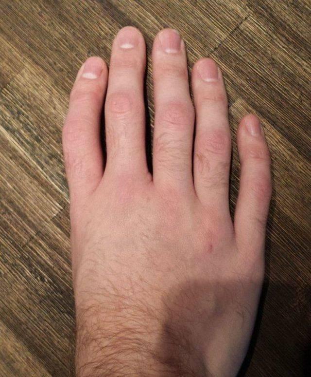рука без большого пальца