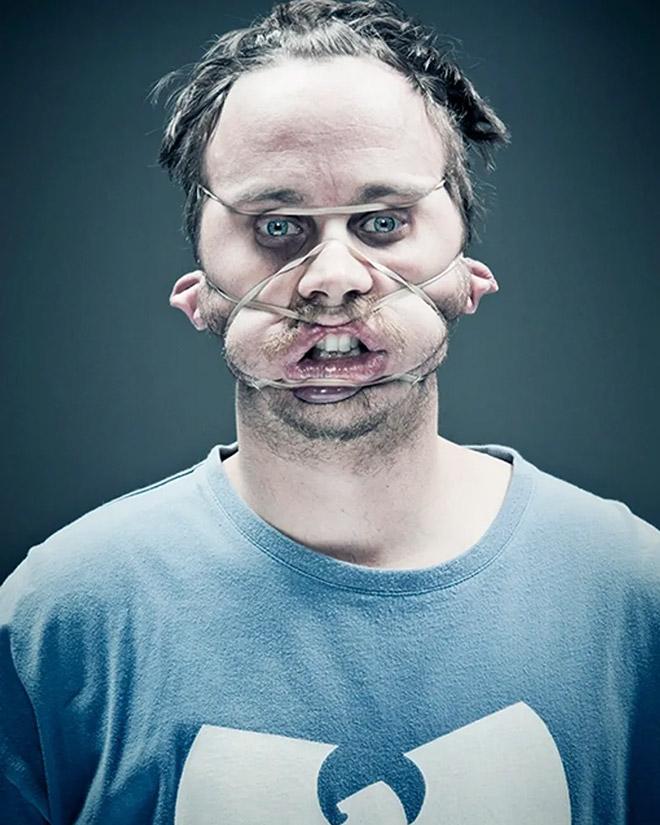 резинка на лице у парня