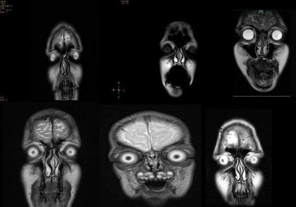 снимки голов на мрт