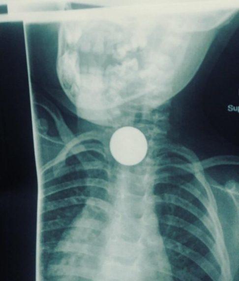 рентген ребенка, проглотившего монету