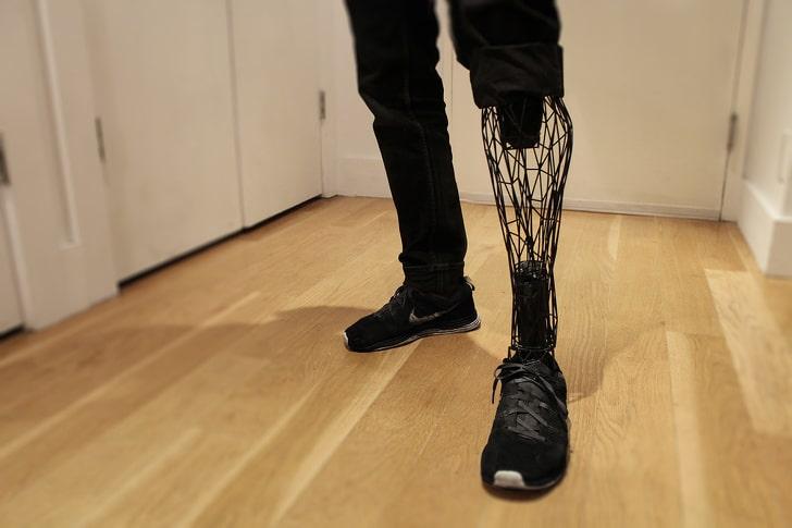 протез ноги