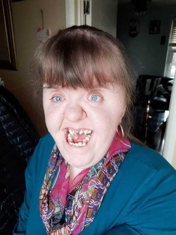 женщина с кривыми зубами