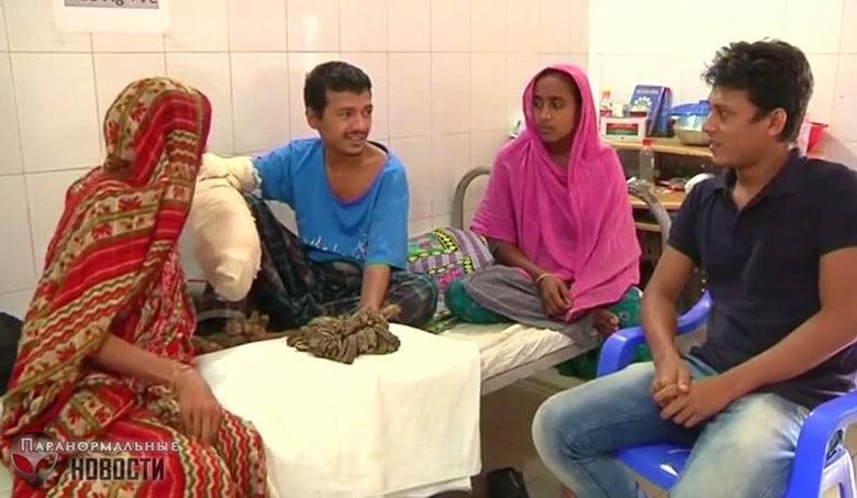 Человек-дерево из Бангладеш готов отрезать руки, лишь бы избавиться от страшных наростов Тайны и мифы