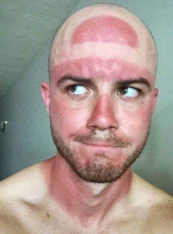 мужчина с красным лицом