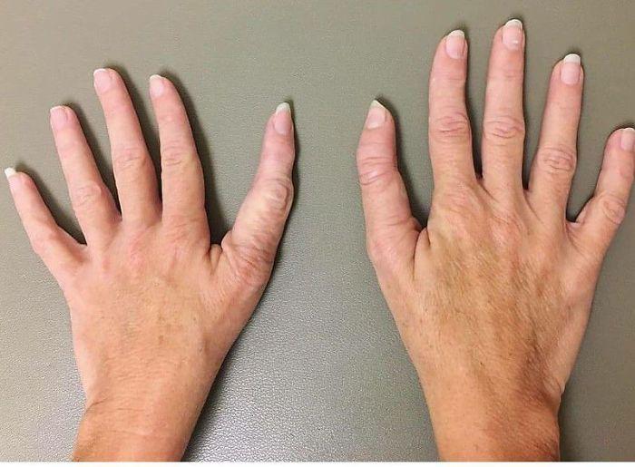 женские руки с деформированными большими пальцами