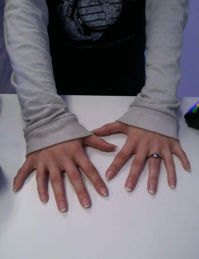 девушка с 6 пальцами на руках