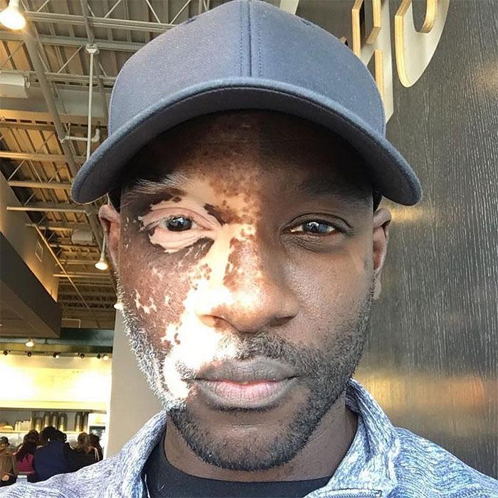 чернокожий парень с витилиго