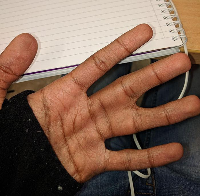 мужская ладонь со срощенными пальцами