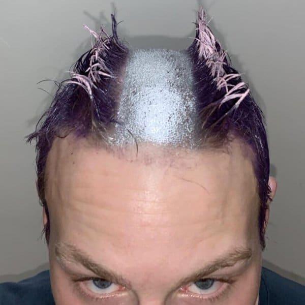 парень с серебристой полосой на голове