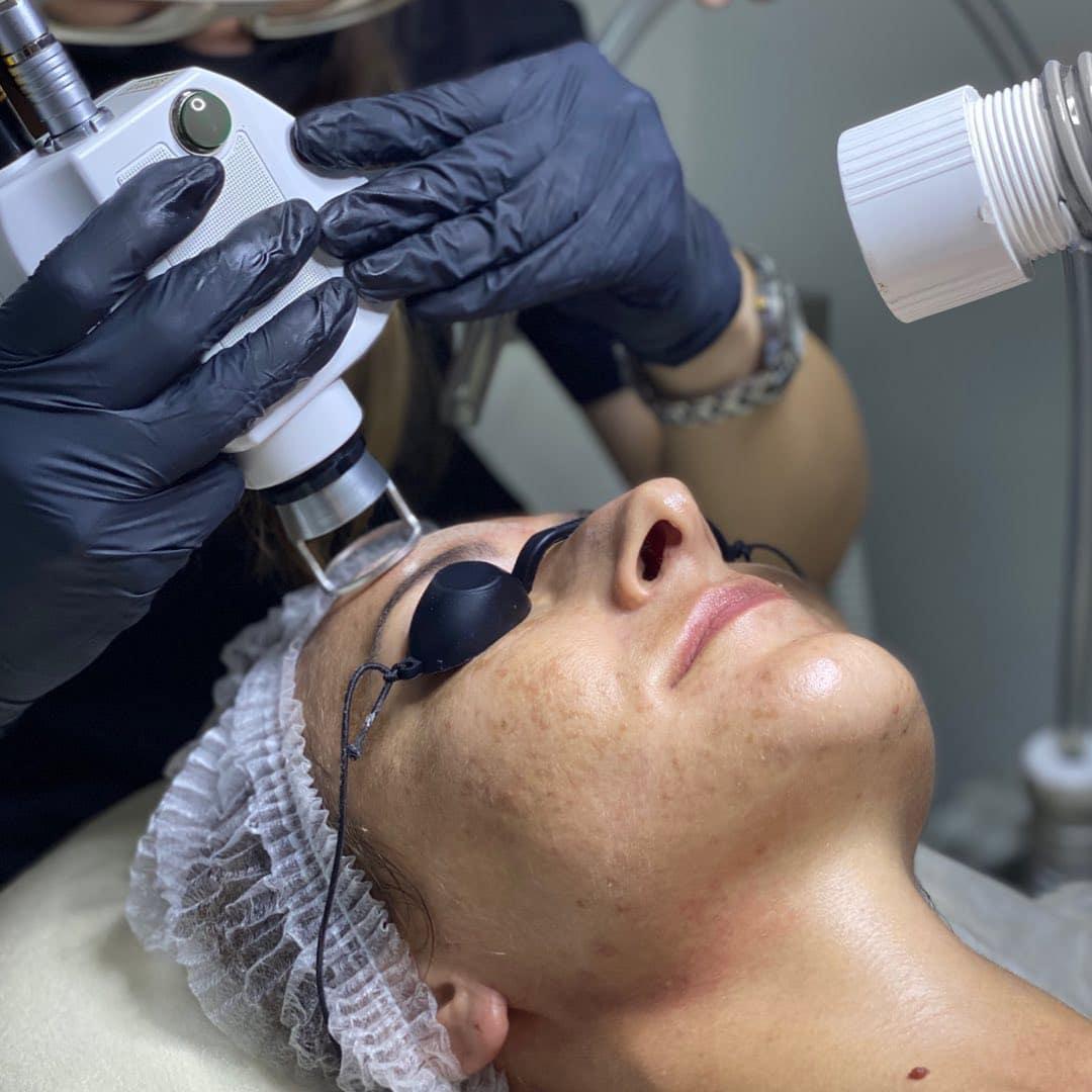 Вторая молодость – лазерные процедуры на страже красоты и здоровья